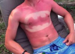 Normal_sunburnart